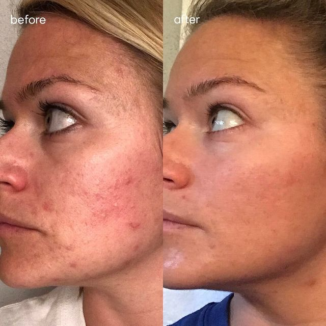 The Dr  Pimple Popper Dry Skin Advice I Wish I Had Months